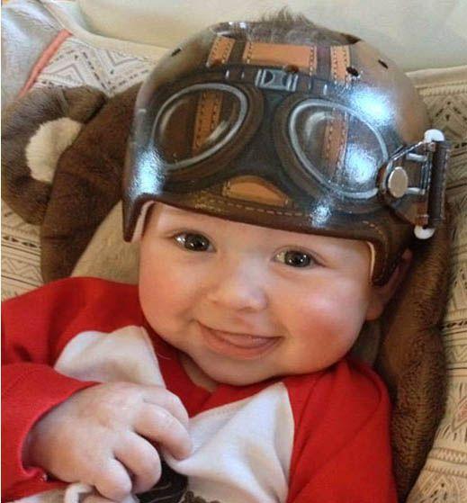 Wunderwerk Fontanelle, Baby s Knautschzone